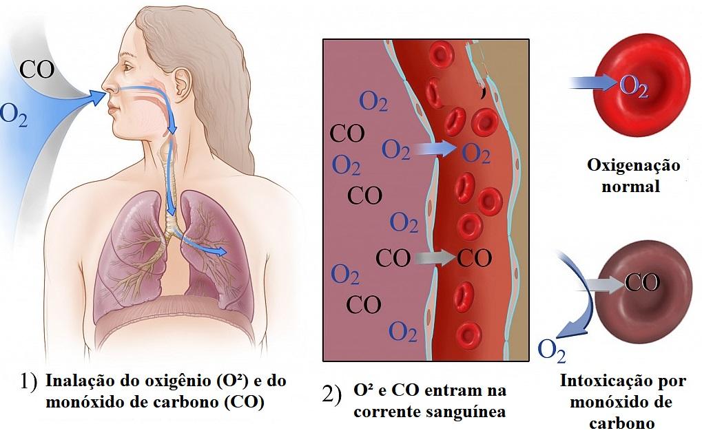 monoxido-de-carbono-sangue